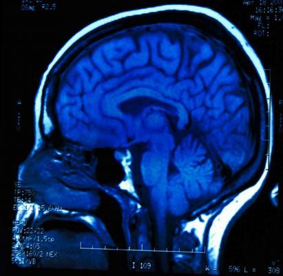 pain patterns, brain scans, fMRI, JAMA Neurology study