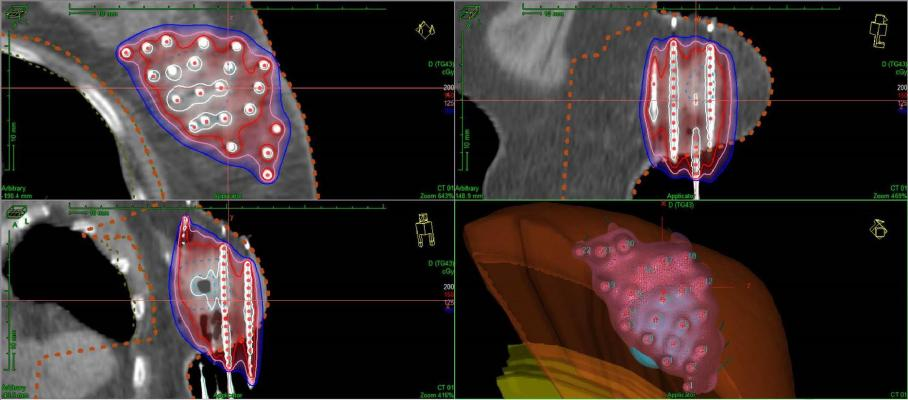 accelerated partial breast irradiation apbi jpg 853x1280