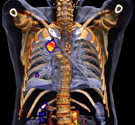 non-small cell lung cancer, NSCLC, large tumors, SBRT, stereotactic body radiation therapy, study