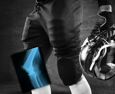 Carestream Supplies Wireless Digital X-ray Detectors for 2018 NFL Combine