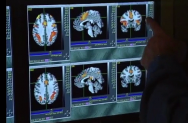 Post-Concussion Brain Changes Persist for Pre-Teen Hockey Players