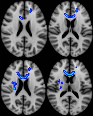DTI, MRI, veterans, concussion effects, brain injury, Radiology