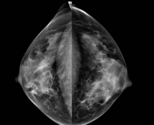 ACR, mammography insurance coverage, SBI, federal mandate extension, USPSTF screening recommendations, task force
