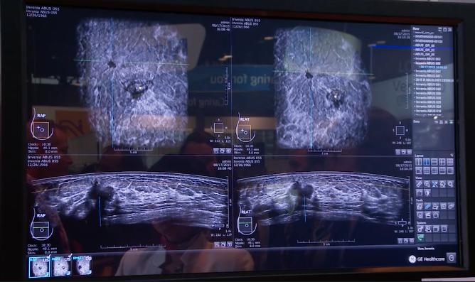 Ikonopedia Introduces Enhanced Breast Ultrasound Reporting Module at SBI