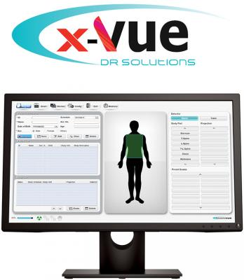 JPI Healthcare Solutions Installs CareRay X-Vue DR System at Ortho Northwest