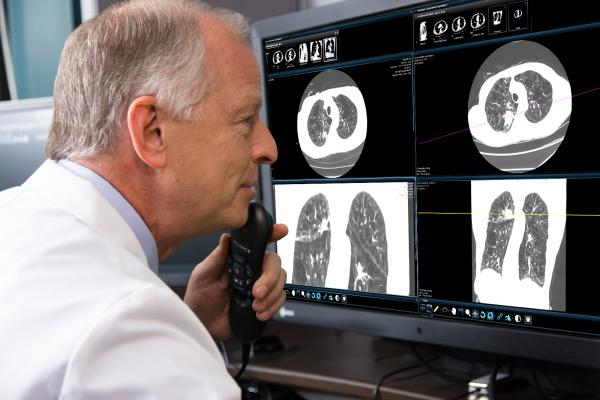 lung cancer, CT, computed tomography, COPD, Screening Protocol Challenge