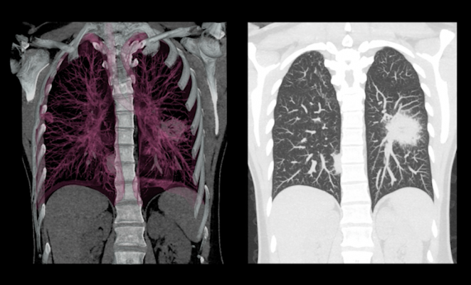 20/20 GeneSystems Launches AI-Based Lung Cancer Detection Technology in China