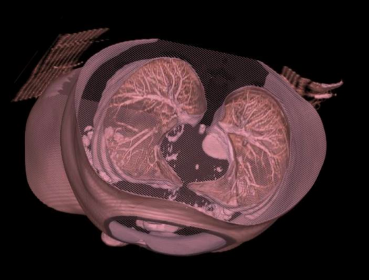 lung cancer, low-dose helical computed tomography, LDCT, Moffitt Cancer Center study, high-risk patients