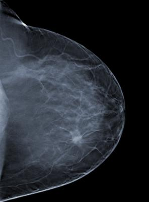 breast cancer subtypes, early detection, risk prediction, biomarkers, Houston Methodist, Randa El-Zein