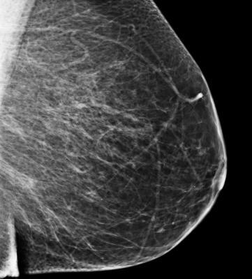 Bielefeld University Germany study, mammography screening, informed decisions
