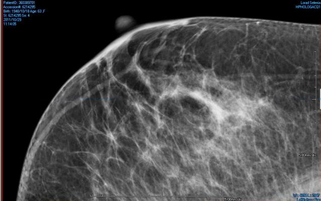 An example of areas of dense breast tissue (white areas) on a mammography X-ray.