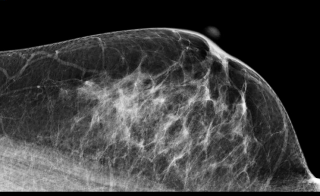mammography, comparison, prior examinations, UCSF study, American Journal of Roentgenology