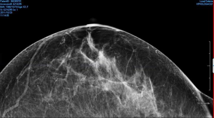 UC Davis study, digital mammography, safety, radiation risk