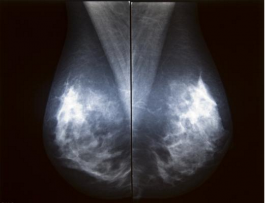 FDA, alternative standard, full field digital mammography, FFDM, qualtity assurance QA