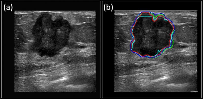 How AI and Deep Learning Will Enable Cancer Diagnosis Via Ultrasound