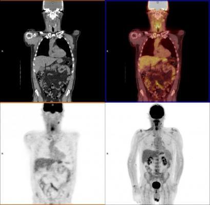 PET-CT, head and neck cancer, U.K. study, persistent cells