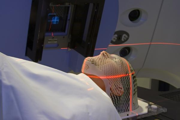 radiation therapy, head and neck cancers, HPV status, UCLA study