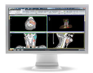 Elekta's Monaco 5.0 Consolidates Treatment Planning Capabilities in One System