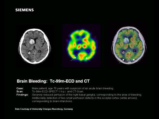 SPECT, traumatic brain injury, TBI, post-traumatic stress disorder, PTSD