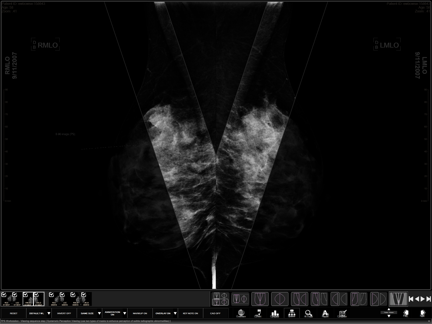 Three Palm Software Patent WorkstationOne Mammography Workstation