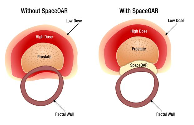SpaceOAR System, prostate cancer radiotherapy, rectum spacer, first in Florida