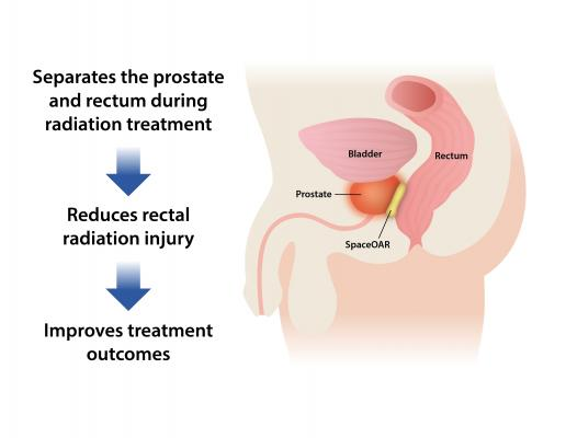Augmenix, SpaceOAR System U.S. Clinical Trial, results, Urology Practice, prostate cancer, radiotherapy