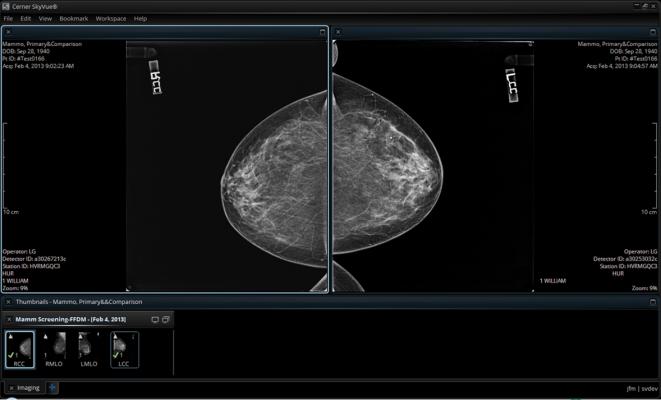 mammography reporting software breast imaging workstations cerner radnet RSNA