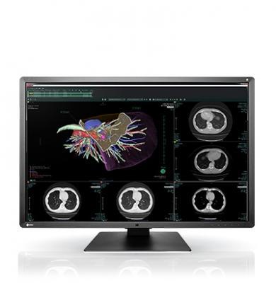 Eizo, RadiForce RX660 medical monitor, RSNA 2016, 6-megapixel