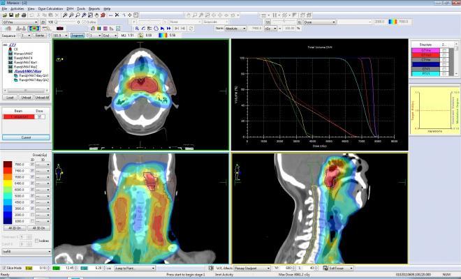 Elekta, Monaco radiotherapy treatment planning system, radiation therapy, AAPM studies