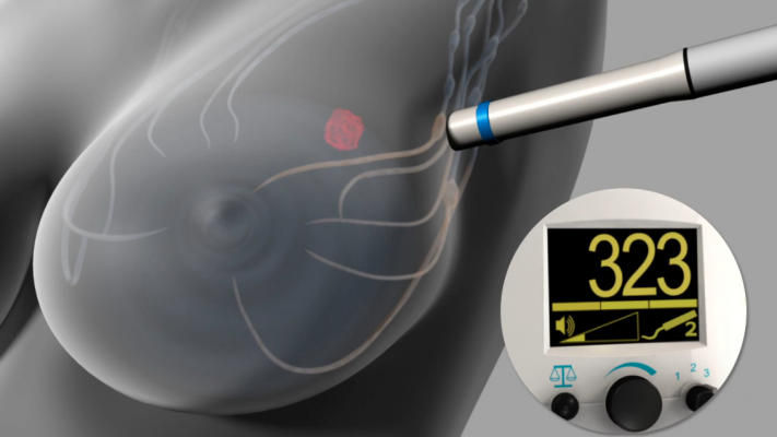 The Magtrace and Sentimag Magnetic Localization System uses magnetic detection during sentinel lymph node biopsy procedures to identify specific lymph nodes, known as sentinel lymph nodes, for surgical removal. The FDA granted approval of the Sentimag System to Endomagnetics Inc.