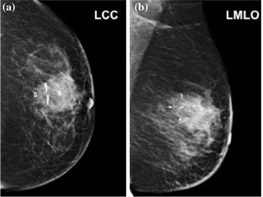 BioZorb three-dimensional implant, breast cancer, radiation therapy targeting, World Journal of Surgery article, ASTRO 2016 study
