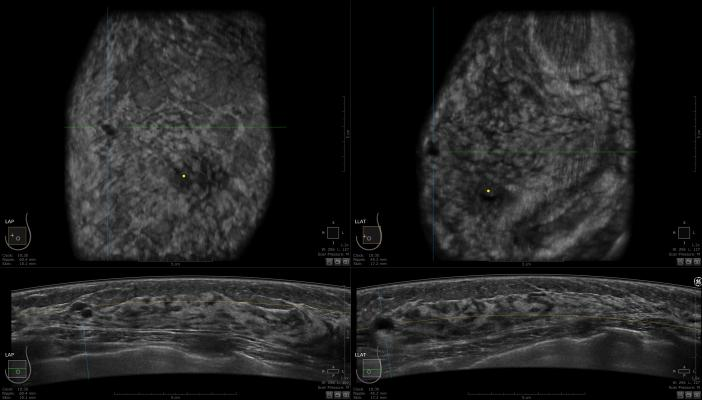 KLAS, women's imaging, 3-D tomosynthesis, breast imaging
