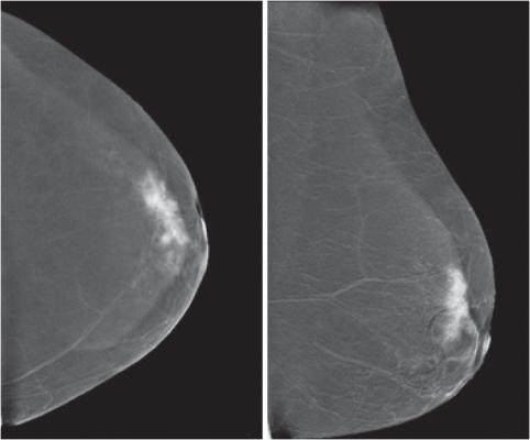 Medicaid expansion, breast cancer screening, low-income women, study, RSNA 2015