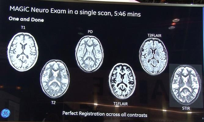 Magic, sigma Pioneer, GE, multiple contrasts in one MRI scan