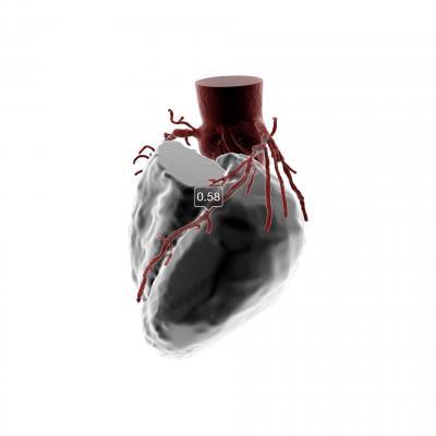 HeartFlow, FFR-CT Analysis, next-generation platform, second FDA clearance