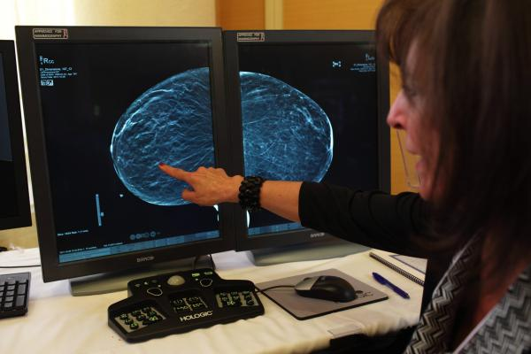 Mammography Market Value in the Americas Projected Beyond $1 Billion by 2020