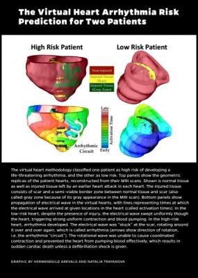 Johns Hopkins, virtual heart modeling tool, VARP, arrhythmias, implanted defibrillator
