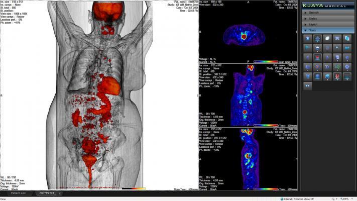 Mirada Medical, Alliance Medical, NHS, National Health Service, United Kingdom, PET/CT, cancer diagnostics