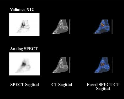 Valiance X12, SPECT/CT, CZT detectors, clinical trial
