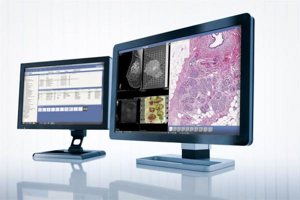 Sectra, RSNA 2015, digital pathology, radiology, integrated solutions, cancer care