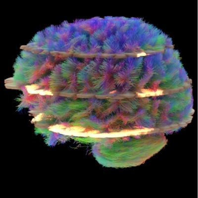 Siemens, FDA clearance, SMS, GOBrain, MRI applications