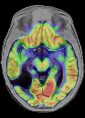 Brainlab, cranial Elements for stereotactic radiosurgery, SRS, ASTRO 2015, VMAT, dynamic conformal arcs