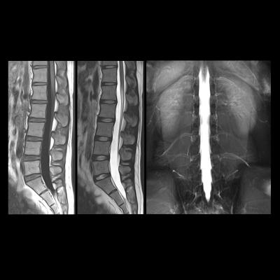 spinal cord, learning, fMRI, University of Montreal