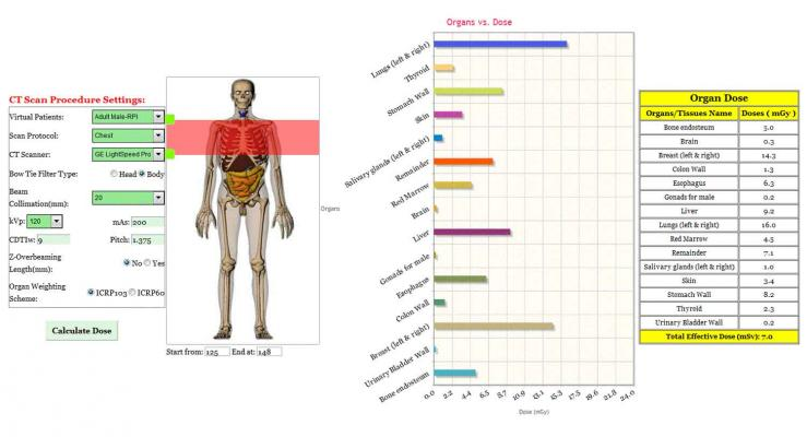 Medsquare, VirtualDose CT module, organ dose calculation, DACS Radiation Dose Monitor, RDM