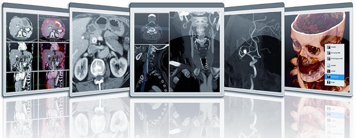 ayDCE software, mpMRI, multiparametric magnetic resonance imaging, prostate MRI, RSNA 2017, AHRA, SIIM