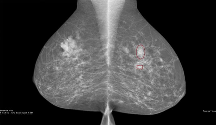 ACOs, MSSP, Medicare Shared Savings Program, screening mammography use study, Radiology journal