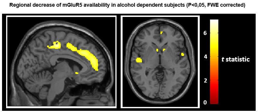 PET-CT study, alcoholic brain, SNMMI 2016, mGluR5 receptor