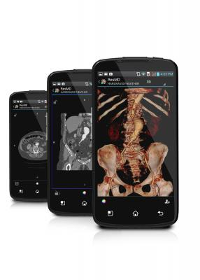 ResolutionMD, CFDA approval, mobile diagnostic images,