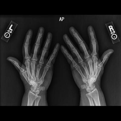 RSNA Announces Pediatric Bone Age Machine Learning Challenge