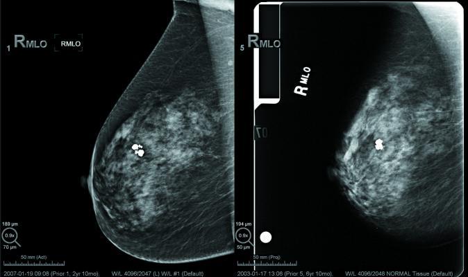 ACR, Senate bill, USPSTF, mammography screening recommendations, delay, 2019